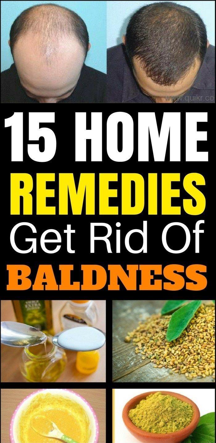 Top Home Remedies To Get Rid Of Baldness!!!  #lifehacks  #homeremedies