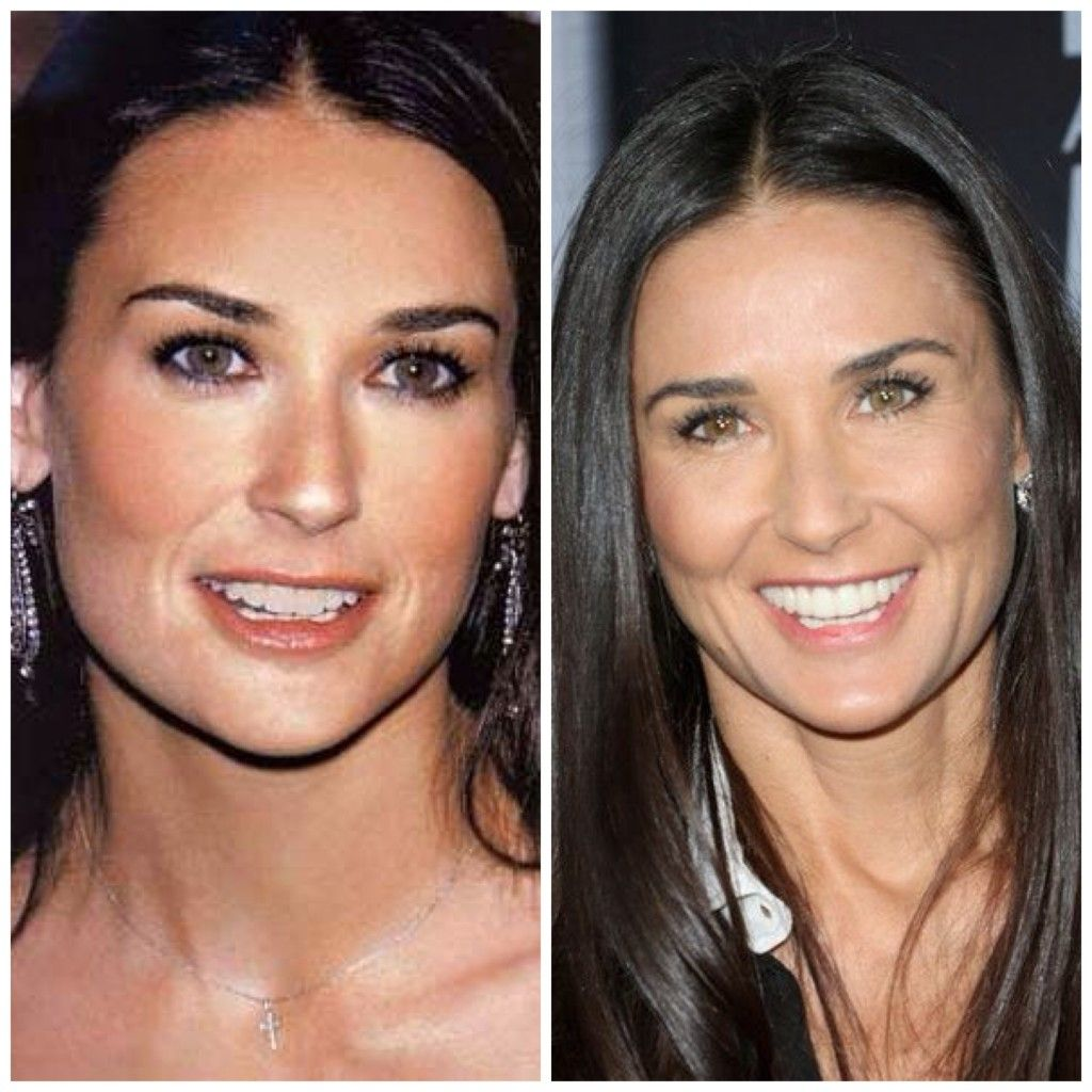 1000+ images about Demi Moore Plastic Surgery on Pinterest | The ...