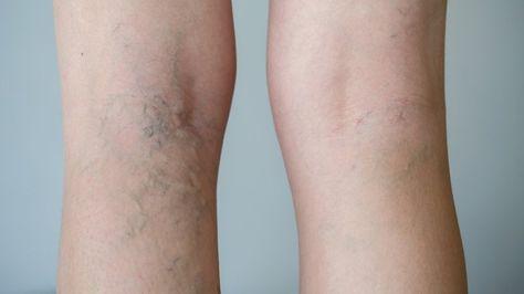 Varizes são pequenas veias dilatadas. Elas podem ser azuladas, roxas ou vermelhas e são claramente visíveis através da pele. Este problema pode afetar tanto mulheres, quanto homens e costuma se concentrar nas pernas e pés. Num primeiro estágio, elas não...