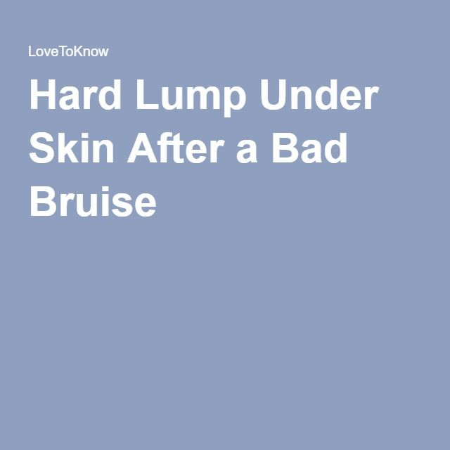 Is a Hard Lump Under Your Skin After a Bad Bruise Serious
