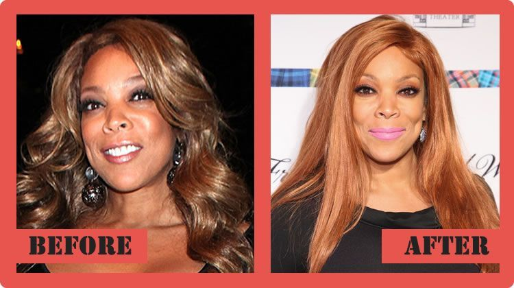 Wendy Williams Plastic Surgery Before And After Wendy Williams ...