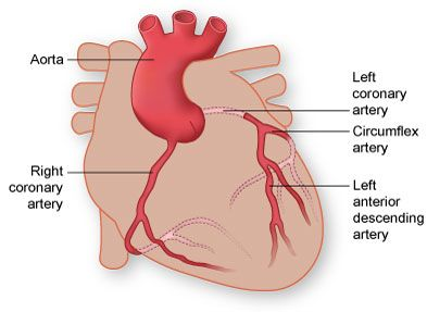 Diagram of the Coronary Arteries by Texas Heart Institute | Heart ...
