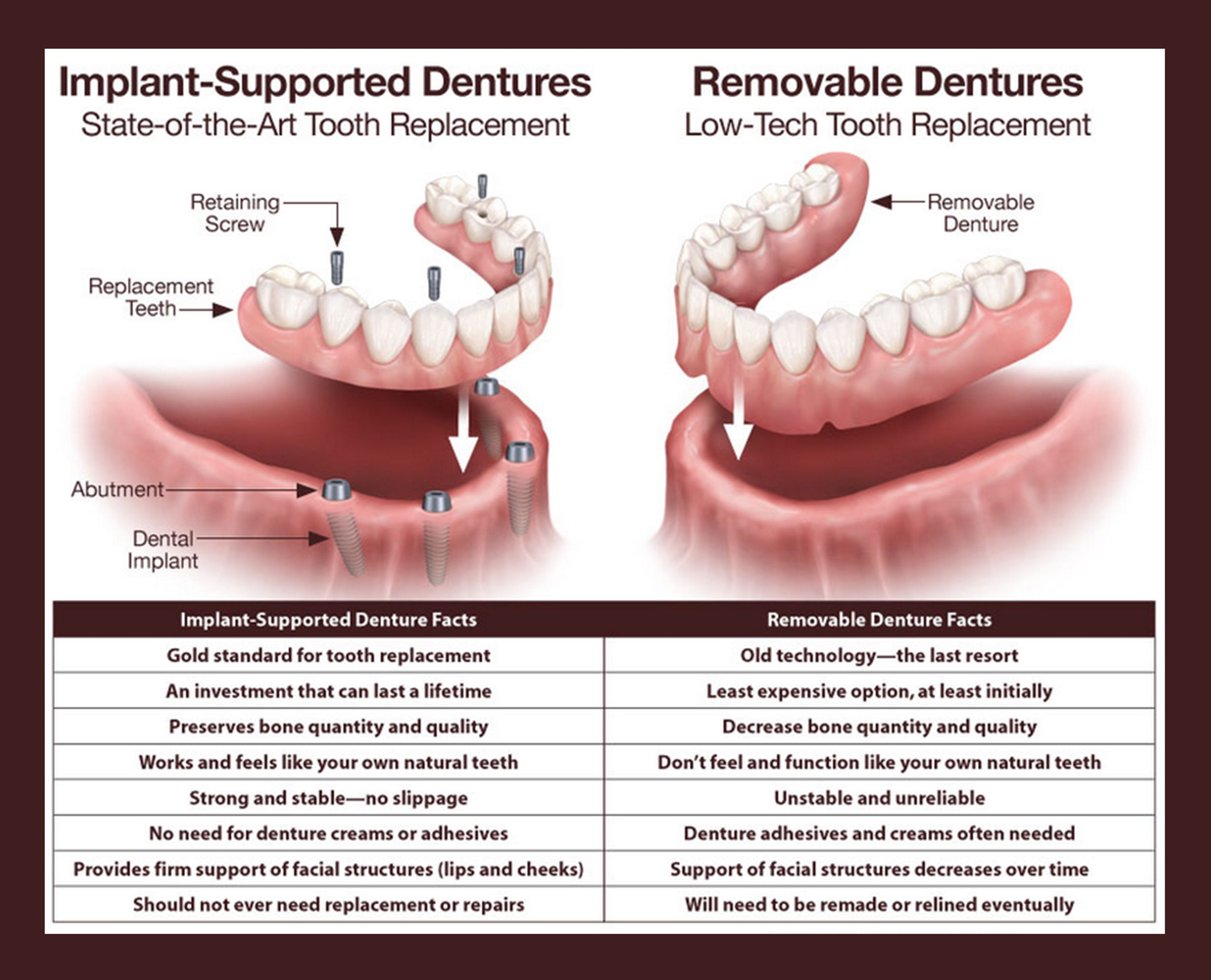 Implant Supported Dentures Vs Removable Dentures Implant Dentistry Dental Implants Cost Dental