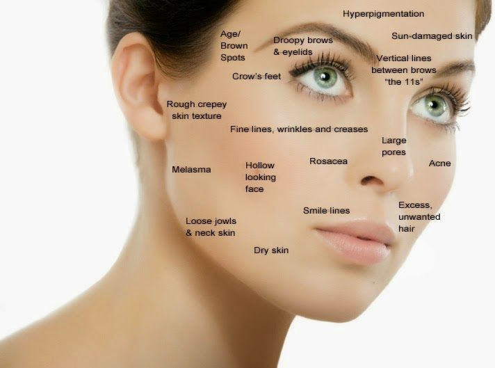 accutane spots and age