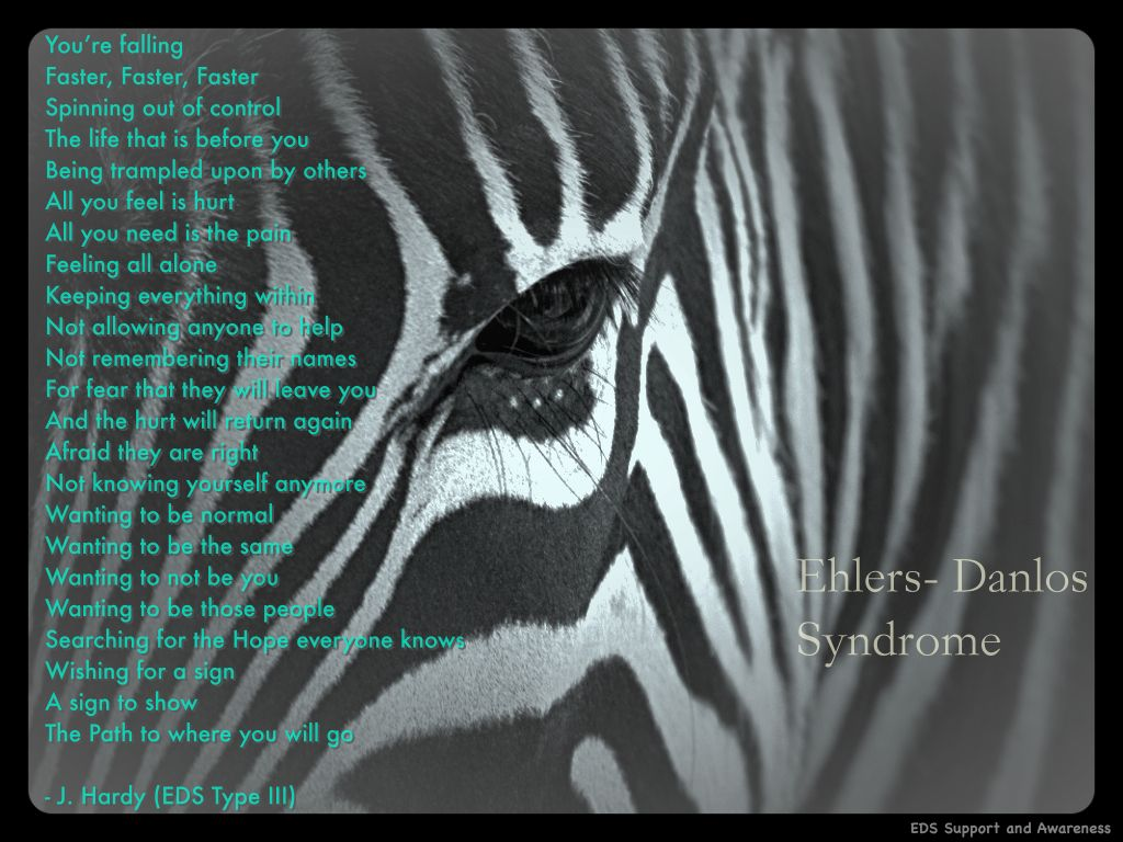 Ehlers Danlos Syndrome Ehlers Danlos Syndrome This Poem Is Written By The Talented 21