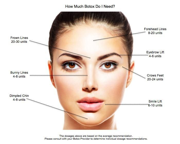botox-how-much-graphic - DMH Aesthetics | Face Miracle