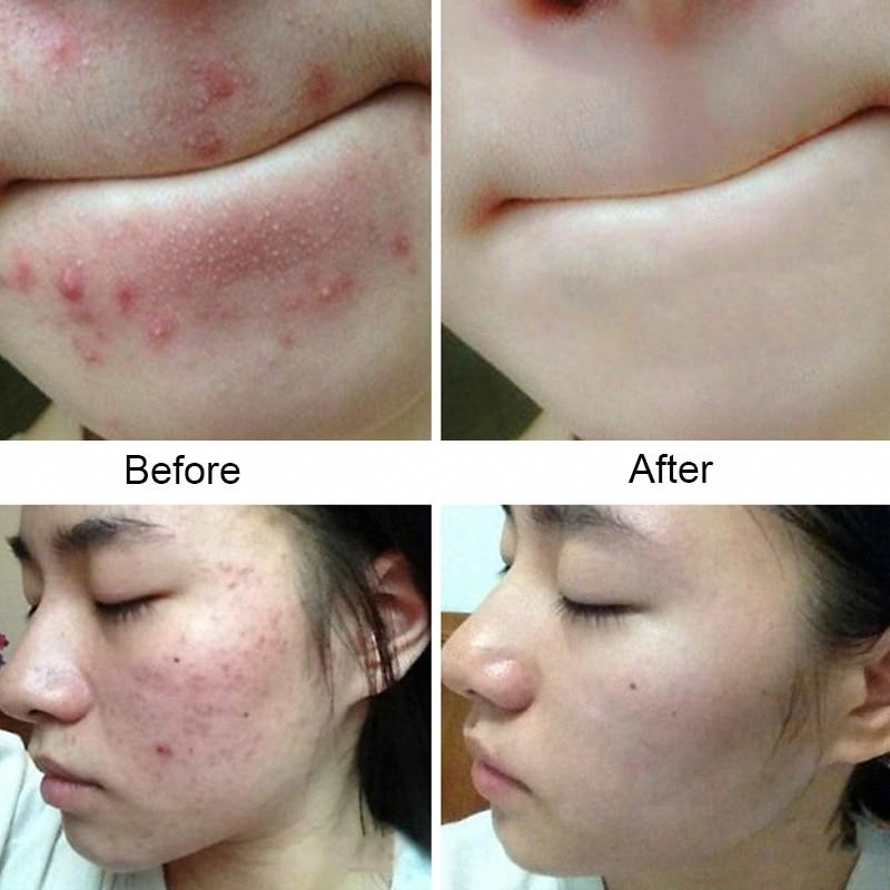 Pin On Skin Care Pimples Overnight
