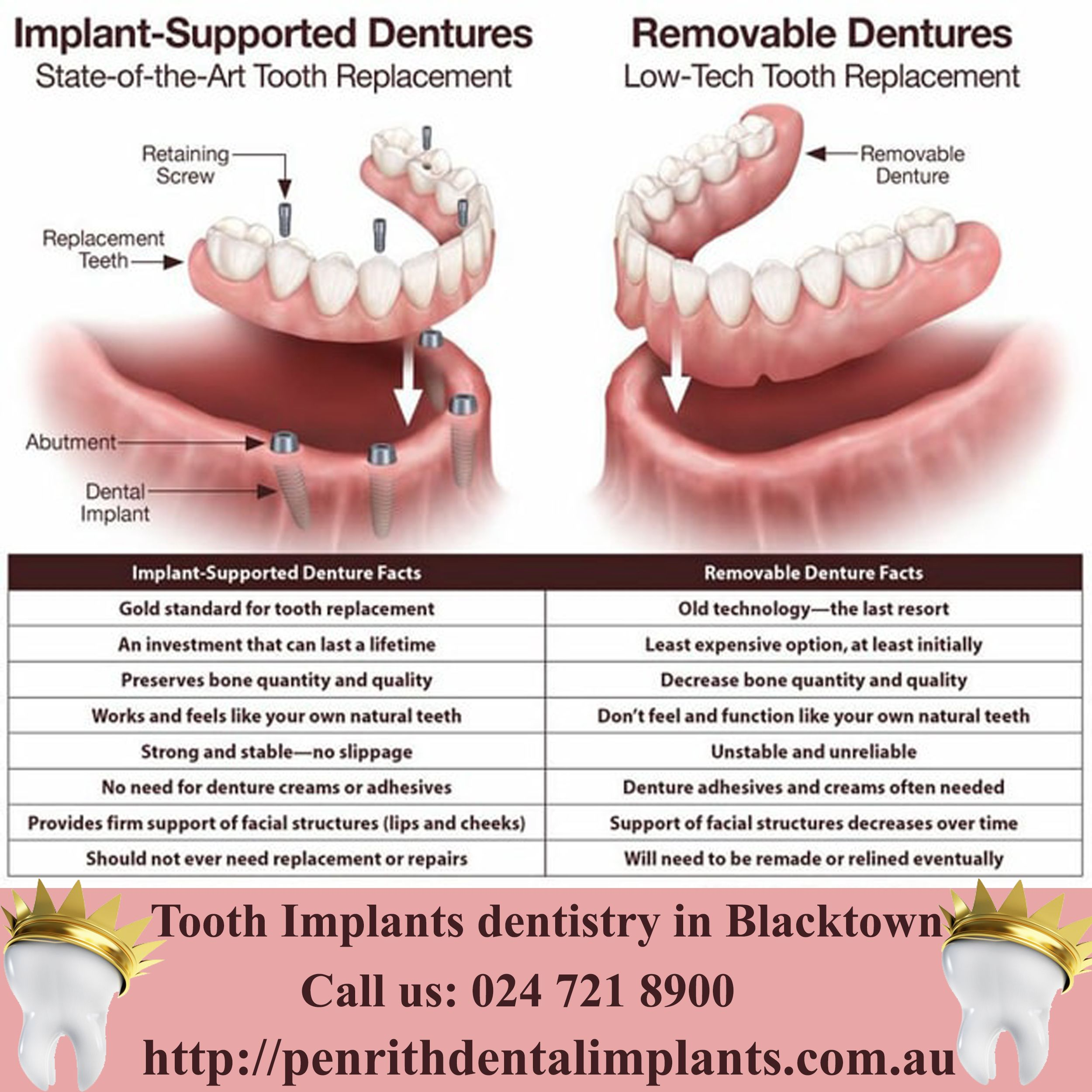 Payment Options For Implants Dentistry Blacktown Affordable Implants Implant Dentistry Tooth Implant Cost Dental Implants Cost