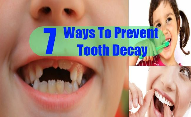 7 Ways To Prevent Tooth Decay