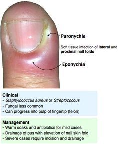 Paronychia and Eponychia Rosh Review | Family Medicine EORE