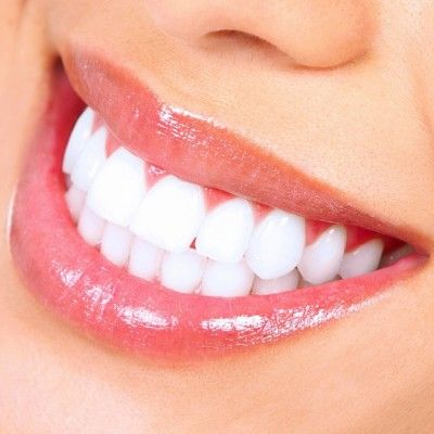 11 Easy Ways To Whiten Your Teeth Home Remedies Pinterest