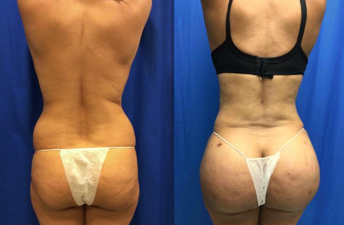 Brazilian Butt Lift Pictures 87