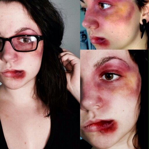 Bruise Special Effects Fx And Gore In 2019 Bruises