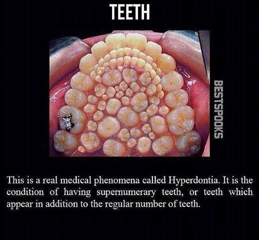 Hyperdontia