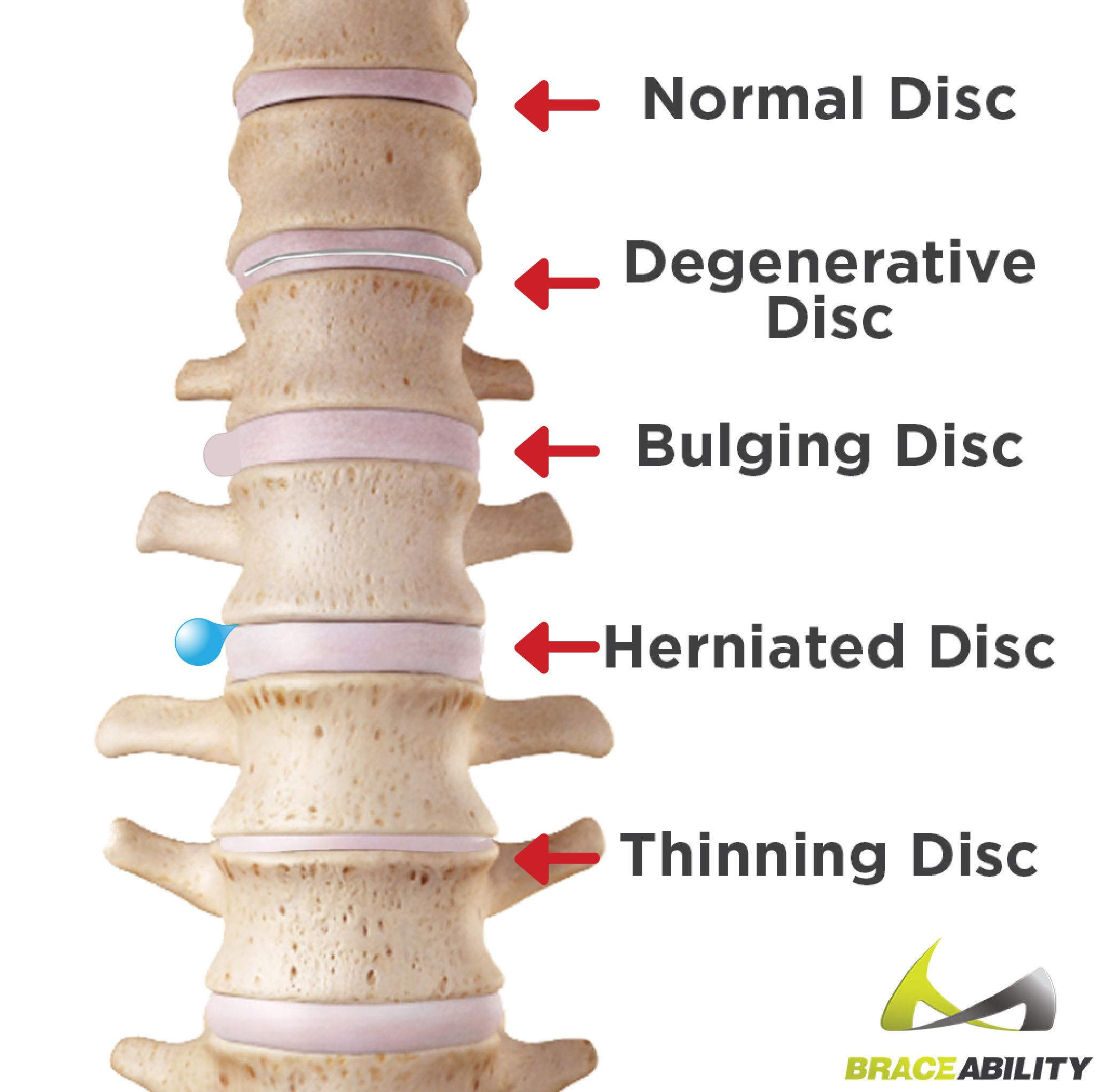 Image result for Bulging disc causes, symptoms & treatments