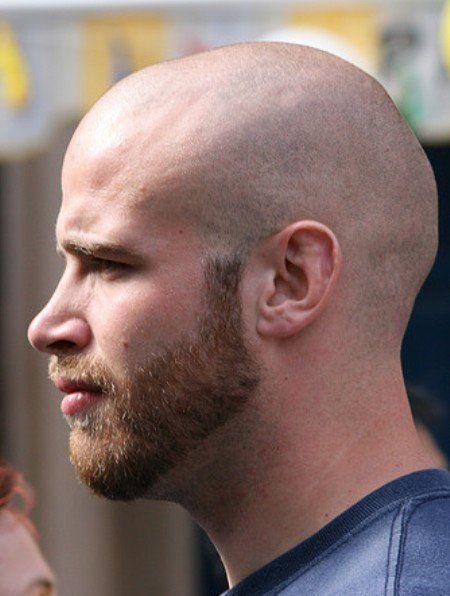 And bald short Short Men: