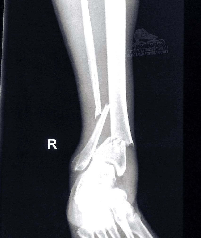 This person broke their ankle bad! | radiography ...