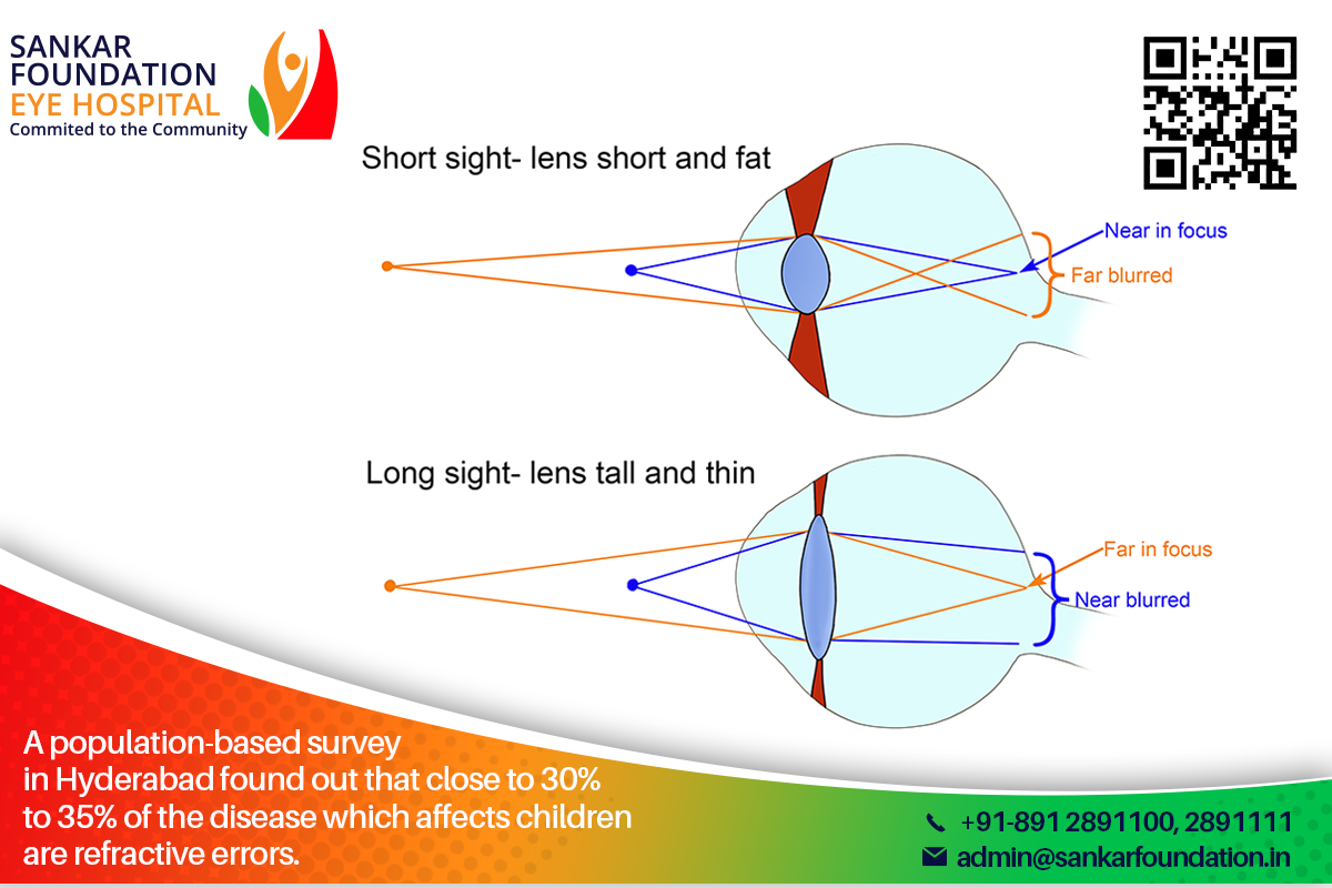 Refractive Errors Include Short Sightedness Long Sightedness Or Lazy Eye If Not Treated At The Right Time Your Child Can Loose Treatment