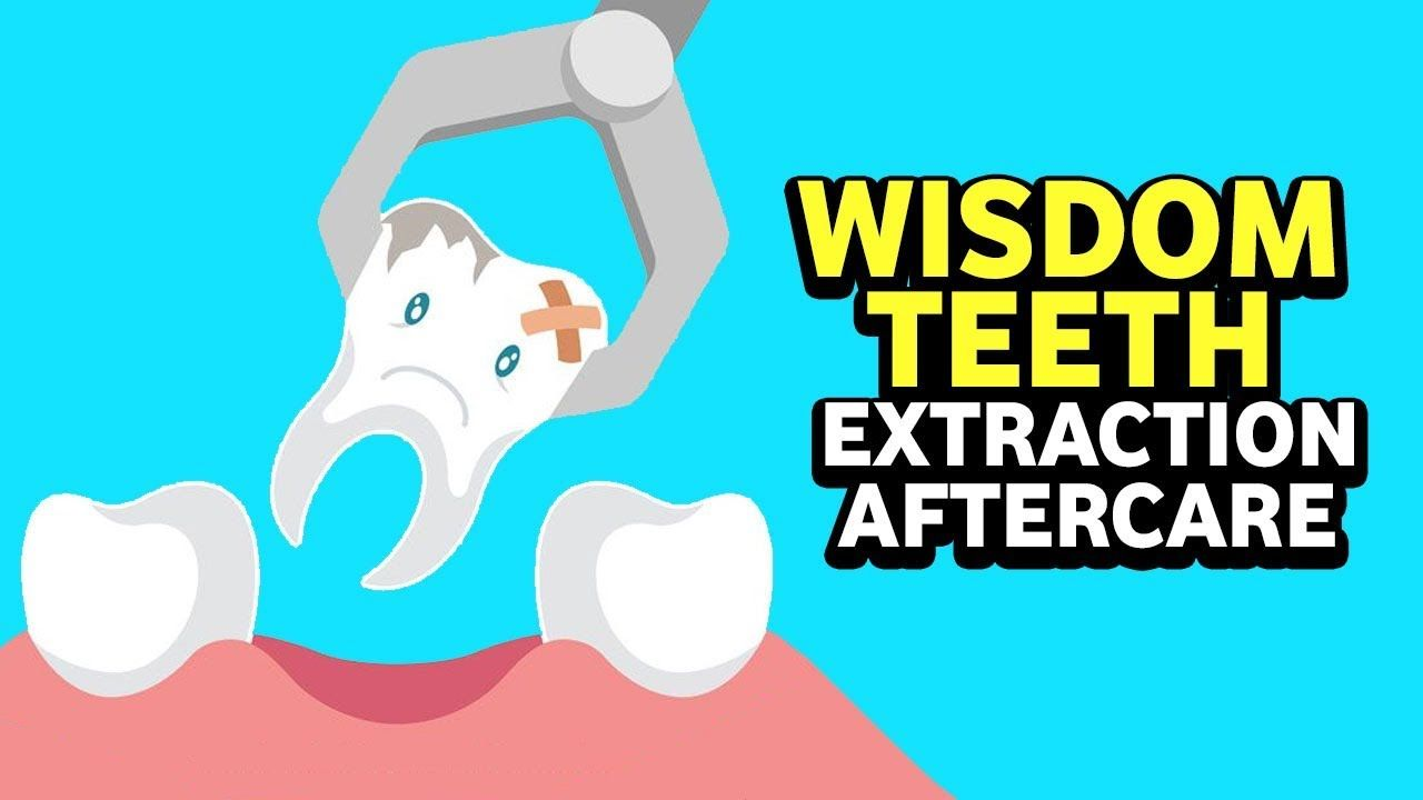 Pin on Tooth extraction pain