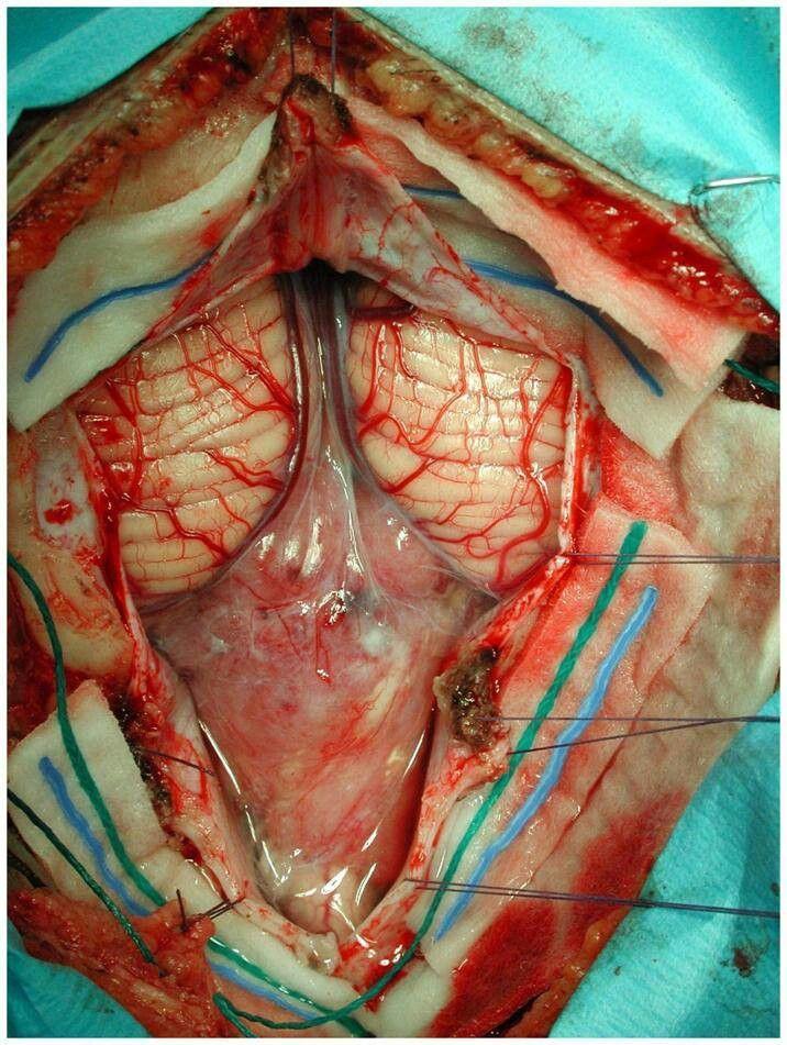 Posterior Fossa Neurosurgery Neurociruga Neurociencia Pinterest