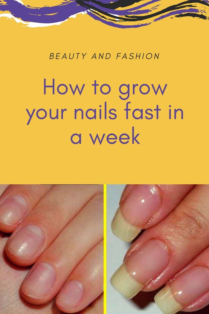 HOW TO GROW YOUR NAILS FAST IN A WEEK | Health Tips for All ...