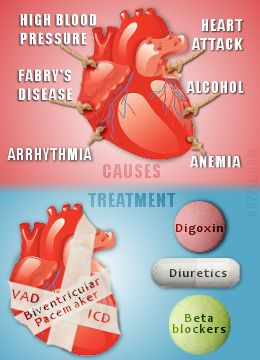 heart enlargement causes and treatment