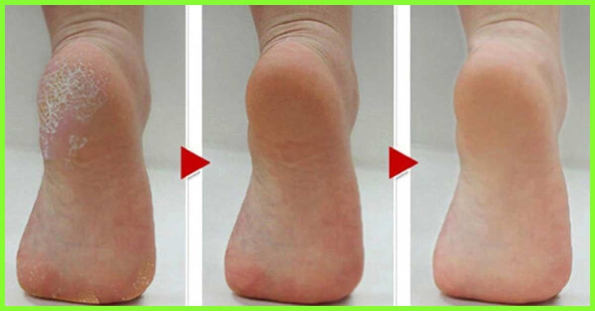 dry scaly skin on feet