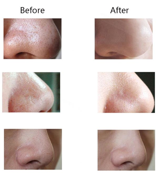 Facial Pore Suction Cleaner