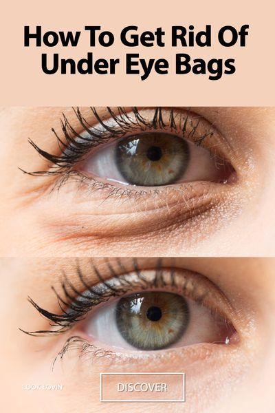 How To Get Rid Of Under Eye Bags: The Best 10 Tips -   25 how to get rid of bags under eyes ideas