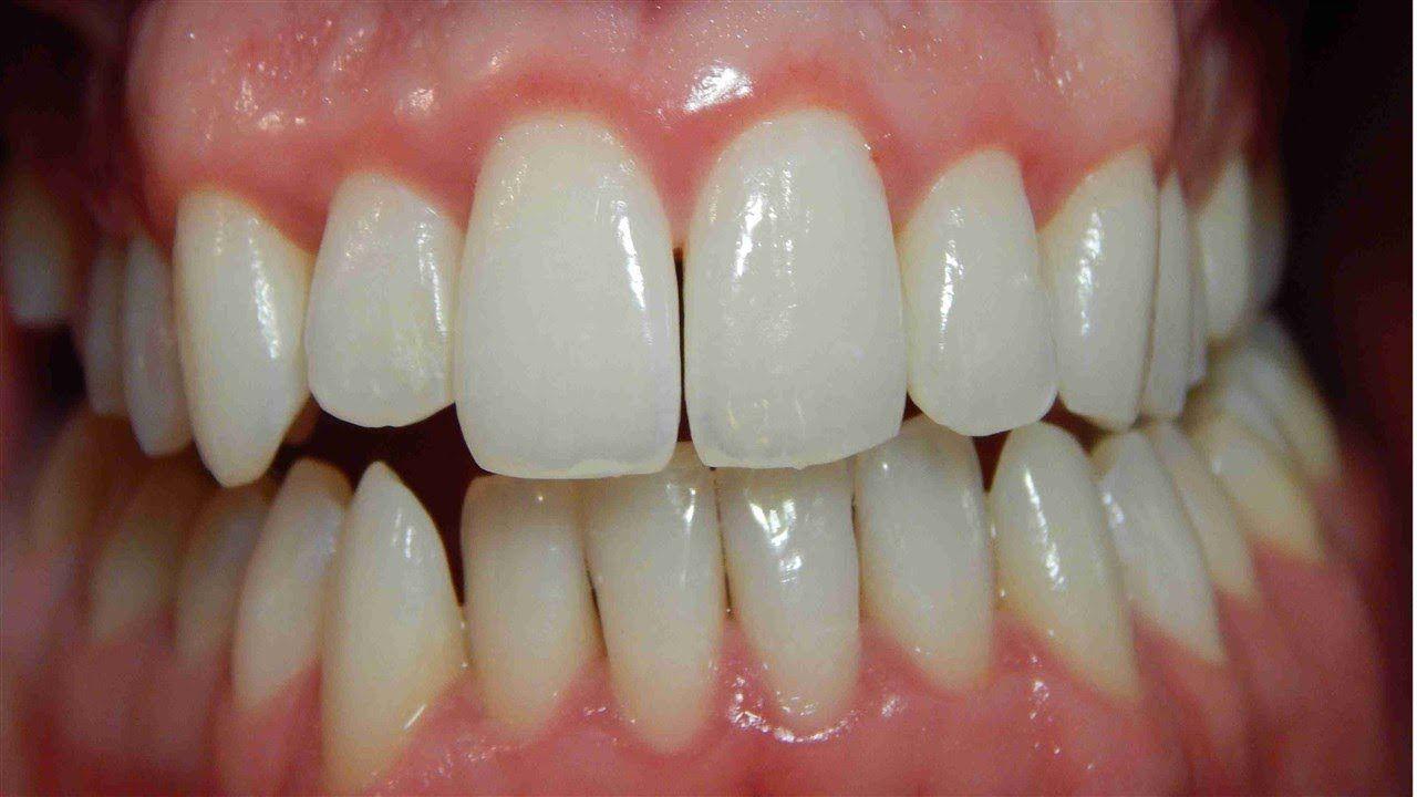 Como aliviar la gingivitis remedios caseros para la