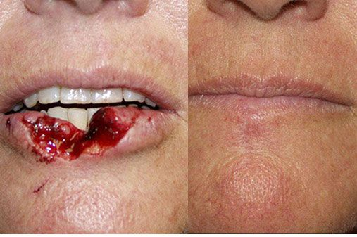 Before (left) and after (right) of a facial trauma surgery performed at The Carlotti Center for Cosm