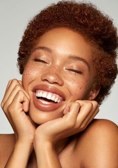 The Most Common Types of Hyperpigmentation... and