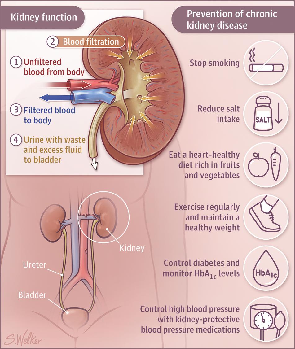 Pin By Shawna Vordokas On Kidneys Pinterest Chronic Kidney