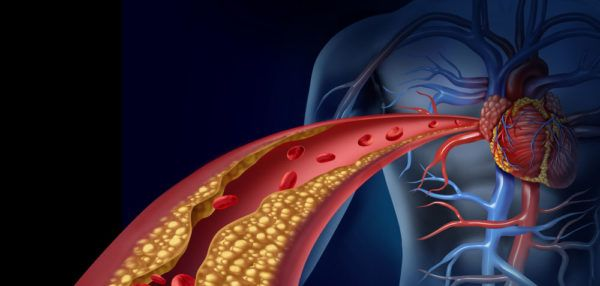 Le cholestérol a une bonne tête de coupable, mais ce sont les statines les véritables bourreaux de votre santé. Finissez en avec les solutions chimiques.