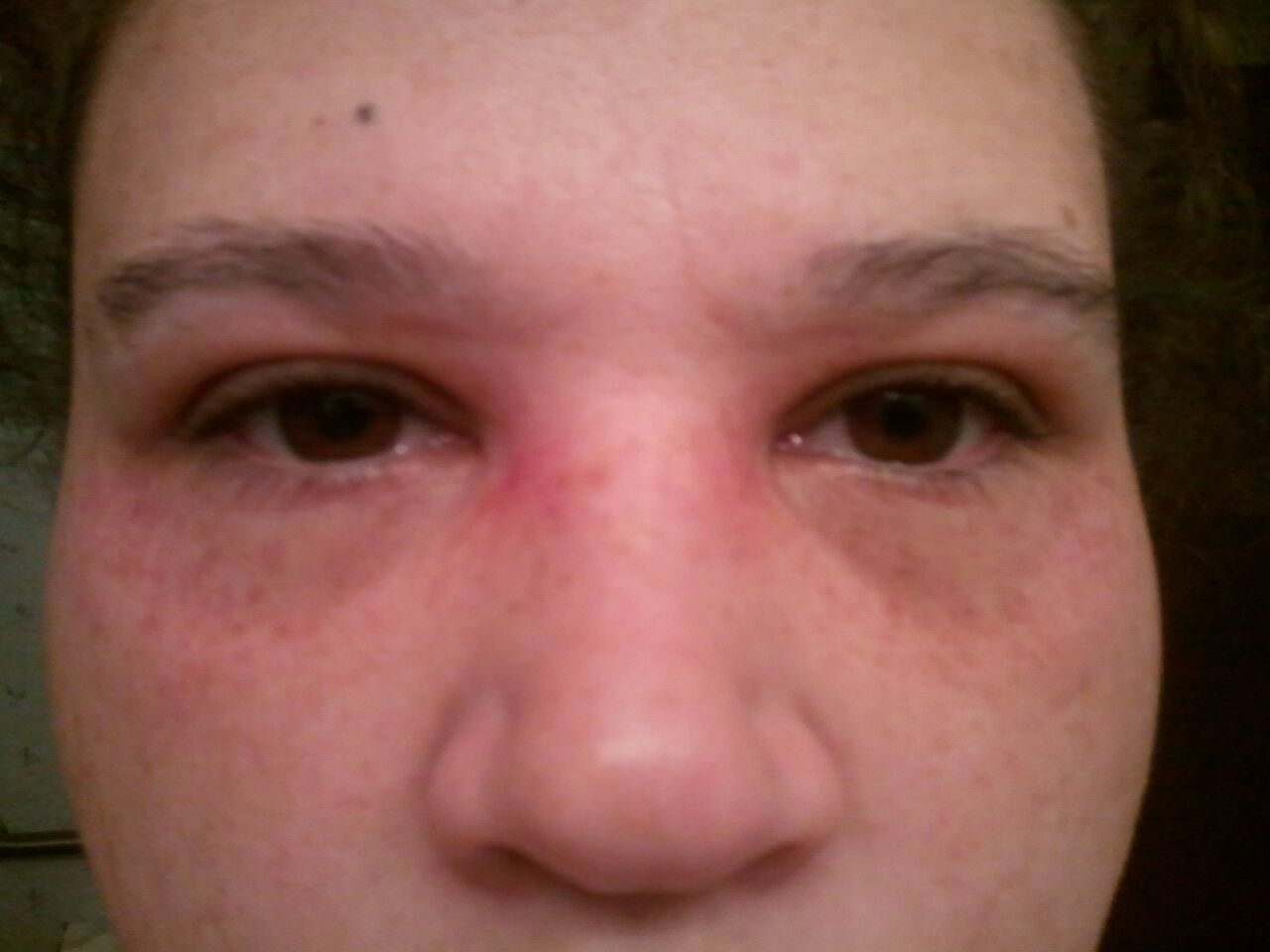 Vomiting and facial blood vessels