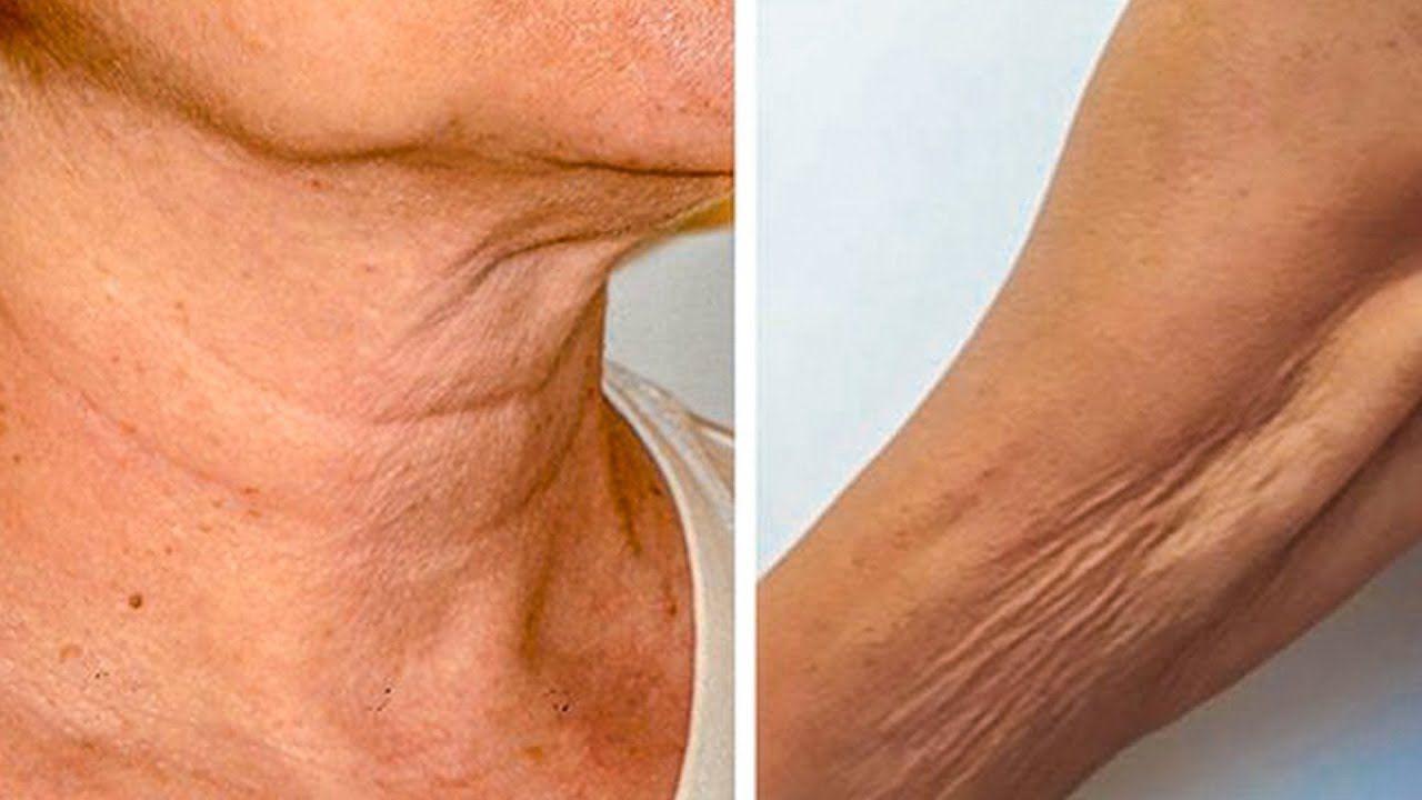 Похудение Обвисание Рук. Как подтянуть обвисшую кожу на руках