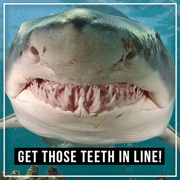 Don T Let Crooked Teeth Ruin Your Smile Straighten Em Out With Braces Call Us At 561 640 7600 Https Www Blueheart Shark Attack Shark S Animals
