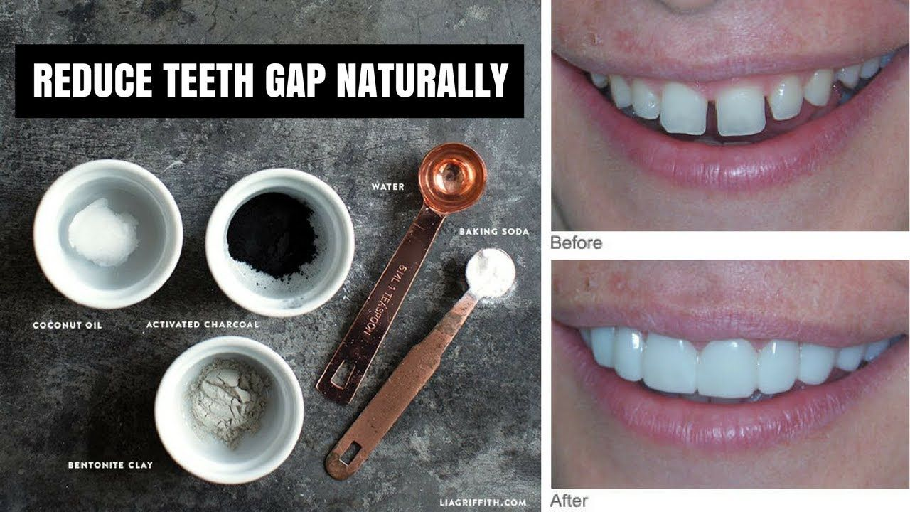 Brilliant How To Reduce Gap Between Teeth Naturally At Home Without Interior Design Ideas Clesiryabchikinfo