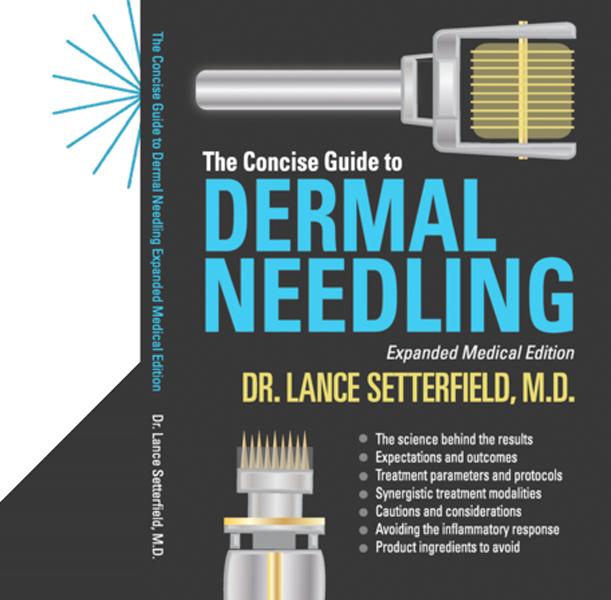 needling guide needling guide aesthetics pinterest facial rh pinterest com Benefits of Needling Skin Needling for Scars