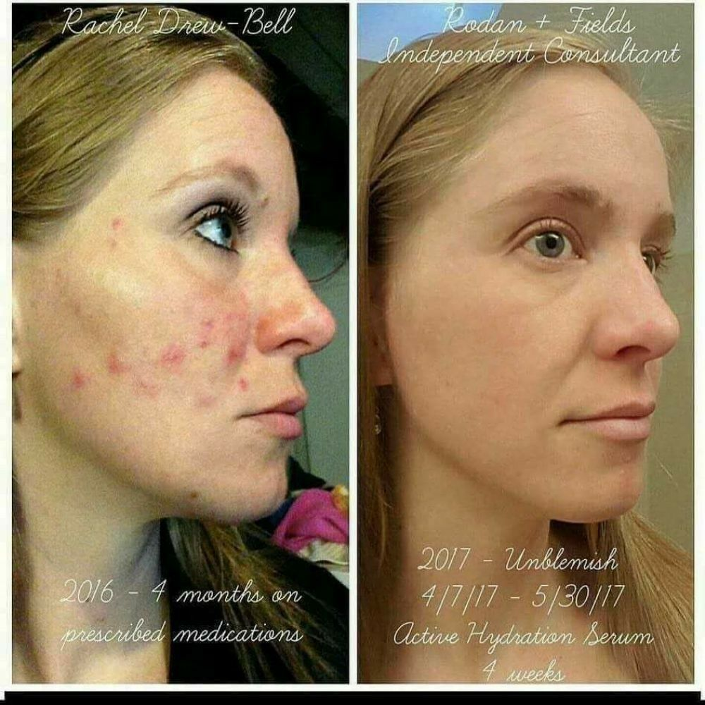 Tired Of Using Prescribed Acne Medication That Does Not Work Clear Acne And Prevent Future Breakouts Unblemish Is Clinically Proven To Deliver Results