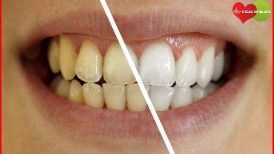 Como Clarear Os Dentes Em Casa Com Esta Receita Facil De Forma