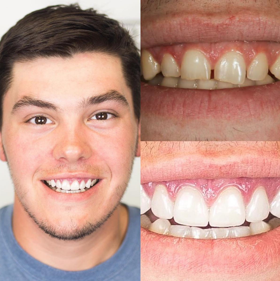 Imaginary Dental Care Tips Products #dentalcare #dentalimplantscostmouths #dentistappointment #imaginary #products #dental #care #tipsImaginary Dental Care Tips Products #dentalcare