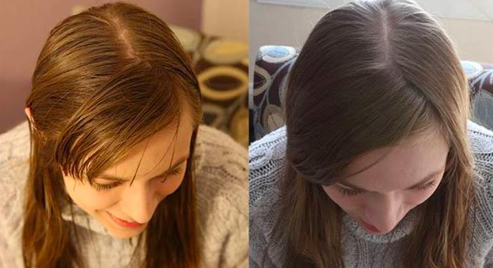 Populaire Magnifiez vos cheveux à l'aide du bicarbonate de soude  RZ79