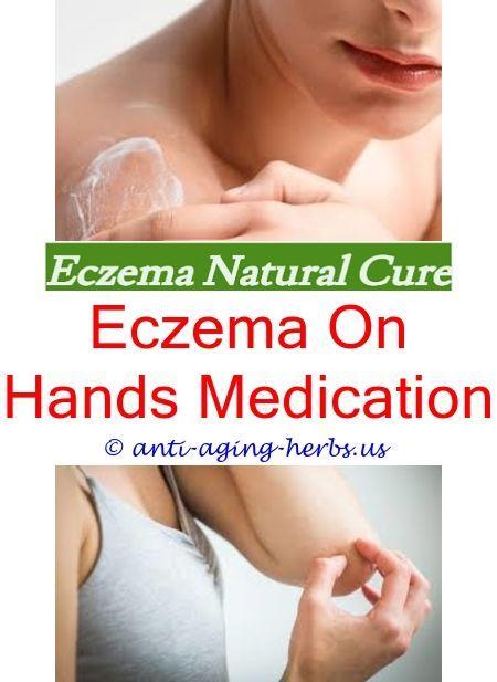 How to stop fake tan sticking to eczema Cyclosporine dosage