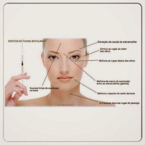 BLUSH SEM BASE por Dra. Sâmela Rosique: Botox X Preenchimento