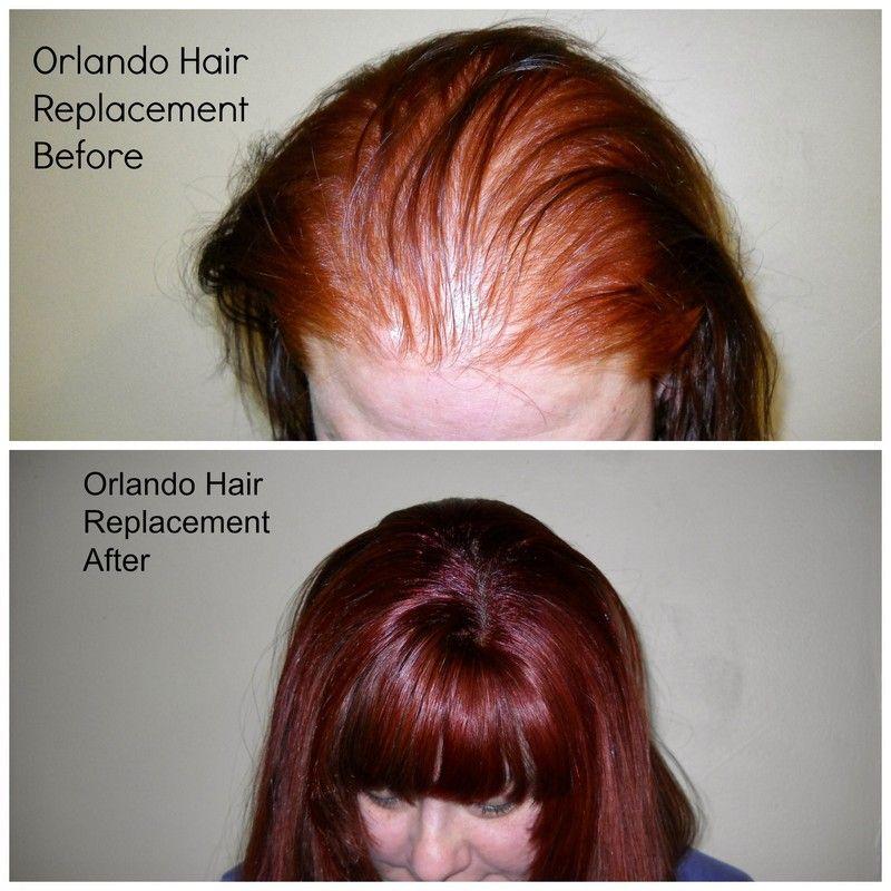 Hair Extensions Cost 16 Best Hair Extensions Pinterest Hair