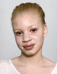 Albino black person
