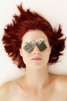 Top 10 DIY Home Remedies For Puffy Eyes