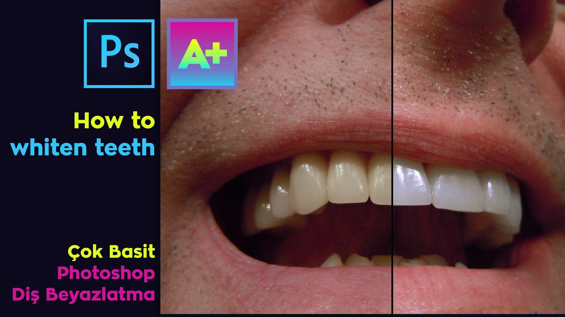 How To Whiten Teeth / Diş Beyazlatma Çok Kolay /