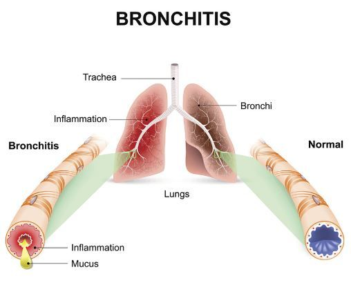 Bronchitis can lead to brown mucus in throat and chest | Health Meds